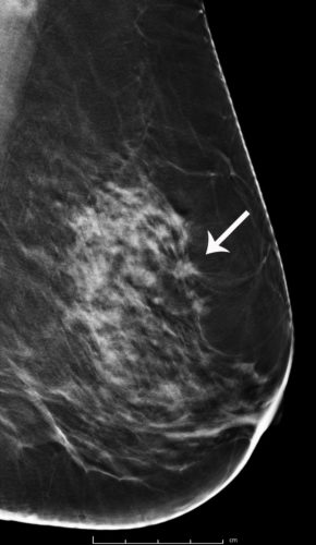 Breast Cancer Screening With 3d Mammography Or Tomosynthesis